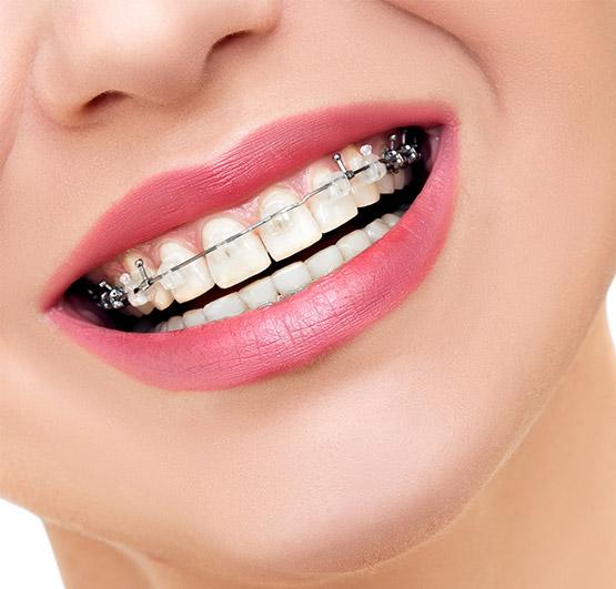 Leczenie ortodontyczne dorosłych